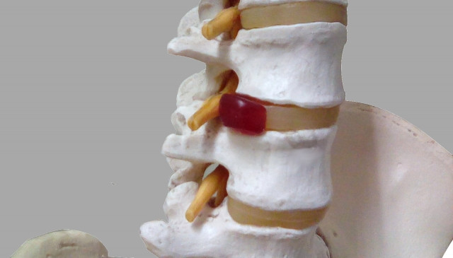 背骨に負担のかかる姿勢も痛みの原因